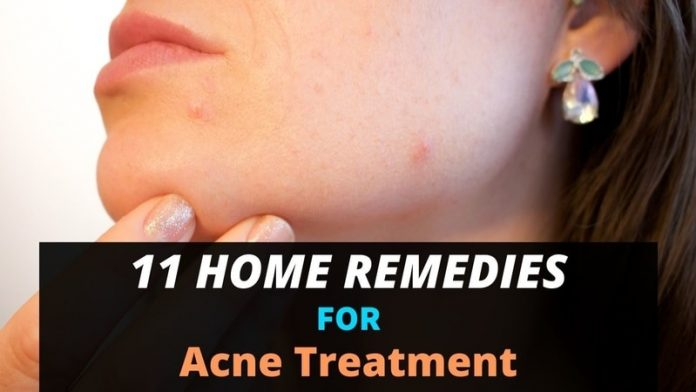 11 Home Remedies for Acne Treatment