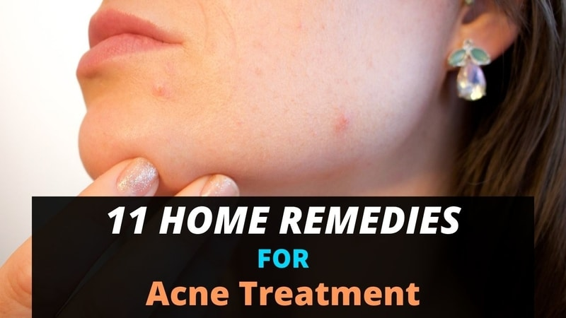 11 Home Remedies For Acne Treatment Mom Envy Blog
